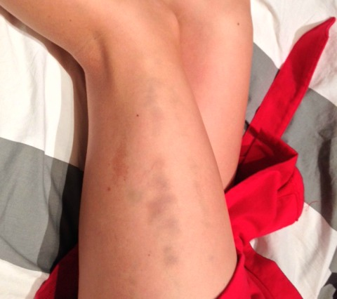 IT band syndrome bruise running injury